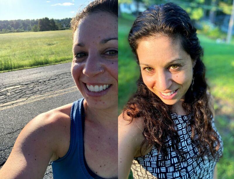 Кожа женщины до и после отказа от масла